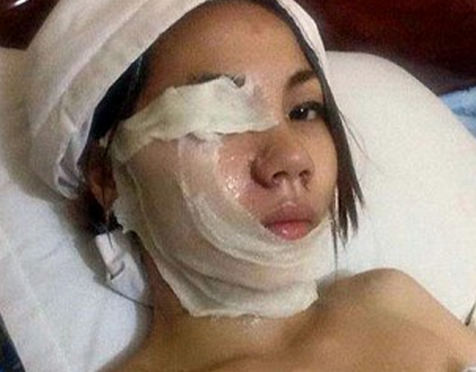 Feminist Idiot Ung Limey Failed In Attempt To Acid Attack Her Ex-Boyfriend As The Wind Blew It Onto Her Face Instead