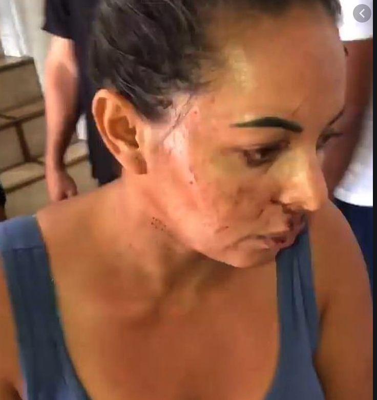 Crazed Murdering Mother Josiemare Gomes Beat Her Daughter To Death, Gouged Out Her Eyeballs And Tongue, Then Tried To Eat Them In Tragic Incident